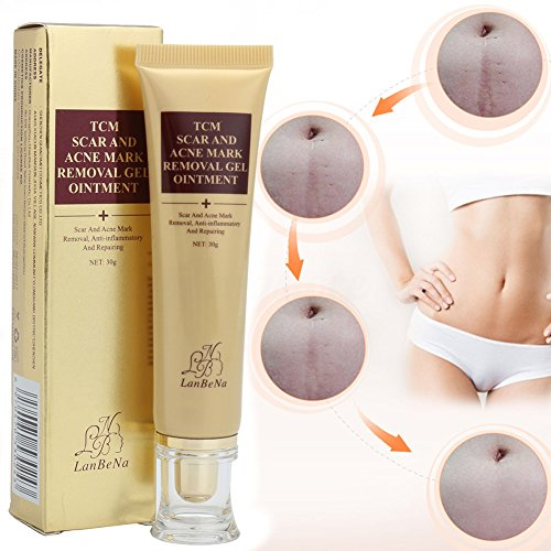 30g TCM Treatment Gel Scar And Acne Mark Removal Cream Ointment LanBeNa Skin Care