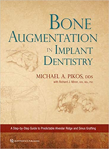 Bone Augmentation in Implant Dentistry  A Step-by-Step Guide to Predictable Alveolar Ridge and Sinus Grafting