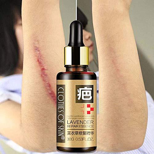 LanLan Narbe Repair Creme 30g Lavendel Haut Reparatur ?therisches ?l Hautpflege Akne Behandlung Mitesser Whitening Essenz Wir Verkaufen Nur Sch?nheit f¨¹r Sie