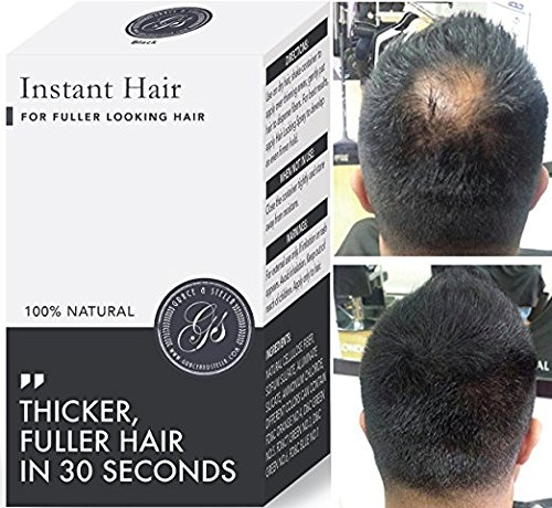 Instant Hair Loss Treatment for Men & Women – 100%, Building Keratin Fibers Cover Thinning and Balding Spots – Make Hair…