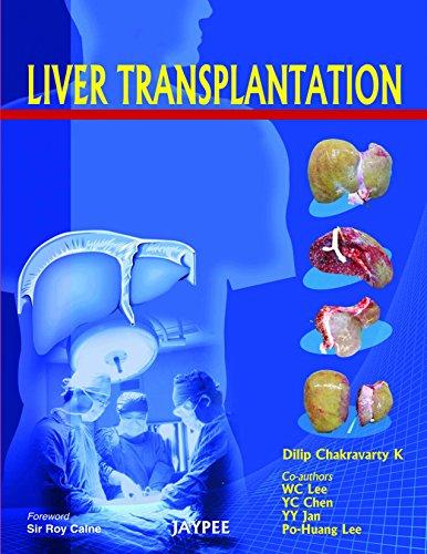 Download Liver Transplantation Pdf
