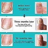 Y.F.M Toenail Treatment, Toenail Care, Nail