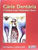 img - for C rie Dent ria - A Doen a E Seu Tratamento Cl nico book / textbook / text book