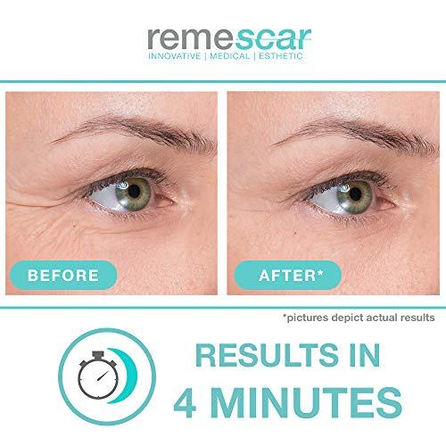 Remescar - Crema de ojos para patas de gallo - Crema de ojos clínicamente probada para reducir las patas de gallo - Crema de ojos antienvejecimiento ...
