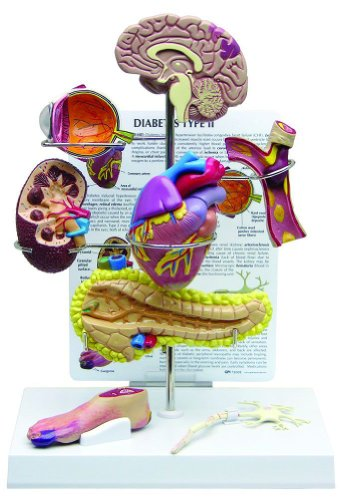 4010 Phones (Type II Diabetes Human Anatomy/Anatomical Model #4010)