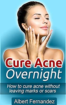 Cure Acne Overnight How To Cure Acne Without Leaving Marks Or Scars Acne Cure Clear Skin Acne Remedy Acne Solution Pimple Cure Pimples Acne Remedies Cures Kindle Edition By Fernandez