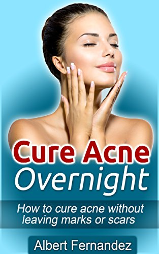 how to decrease acne overnight
