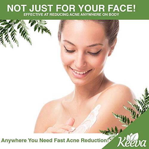Keeva Organics Acne Treatment Cream With Secret TEA TREE OIL Formula - Perfect For Acne Scar Removal, Fighting Breakouts, Spots, Cystic Acne - See Results in Days Without Dry Skin (1oz)