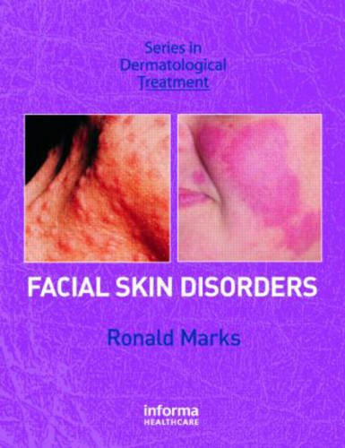 Facial Skin Disorders (Series in Dermatological Treatment)