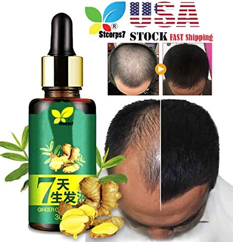 Ginger Germinal Oil Hair Growth, STCORPS7 Ginger Essential Oil Hair Growth Hair Loss Treatment Hair Growth Serum for Men and Women (30ml.)