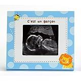 Kangaroo Optikos 1018B Sonogram Frame, French Edition, Blue