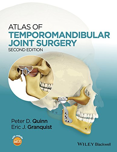 Download Atlas of Temporomandibular Joint Surgery Pdf
