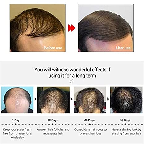 Qbisolo - Spray de tratamiento para pérdida de cabello rápido y potente para mujeres y hombres, antipérdida de cabello: Amazon.es: Belleza