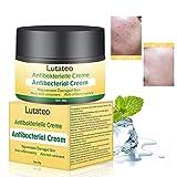 Natural Herbal Eczema Skin Cream,Chinese Antibacterial Ointment Creams Psoriasis Eczema Peeling Herbal Creams