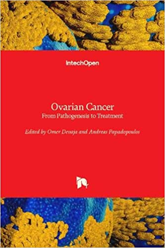 Buy Ovarian Cancer From Pathogenesis To Treatment Book Online At Low Prices In India Ovarian Cancer From Pathogenesis To Treatment Reviews Ratings Amazon In