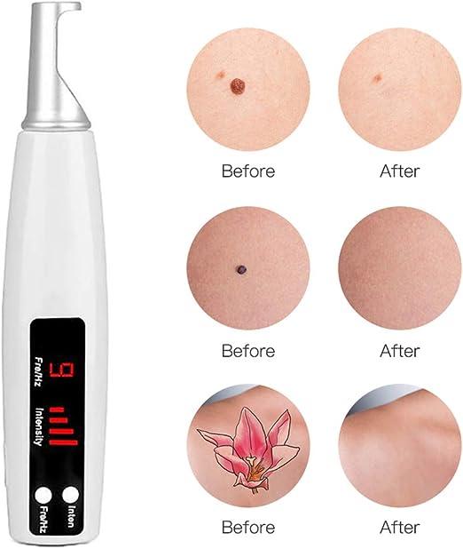 Manchas Cara Eliminación Pen 9 Modos para Eliminar Tatuaje Skin ...