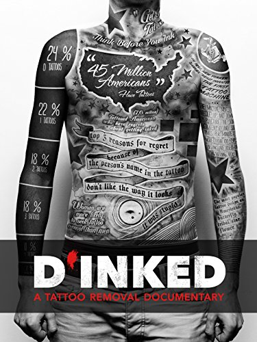 (D'Inked - A Tattoo Removal)
