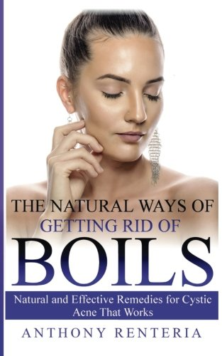 (The Natural Ways of Getting Rid of Boils: Natural and Effective Remedies for Cystic Acne that Works)