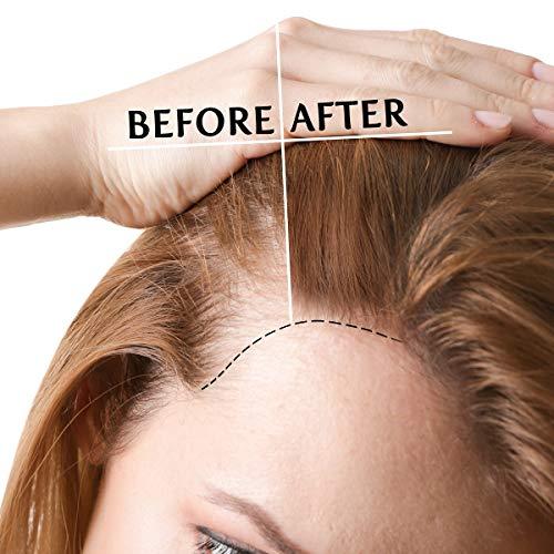 Hair Growth Oil with 2% Biotin 3% Caffeine- Castor...