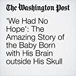 'We Had No Hope': The Amazing Story of the Baby Born with His Brain outside His Skull | Lindsey Bever