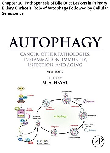 Sasaki Basic - Autophagy: Chapter 20. Pathogenesis of Bile Duct Lesions in Primary Biliary Cirrhosis: Role of Autophagy Followed by Cellular Senescence