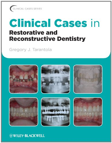 Clinical Cases in Restorative and Reconstructive Dentistry (Clinical Cases (Dentistry)) Pdf