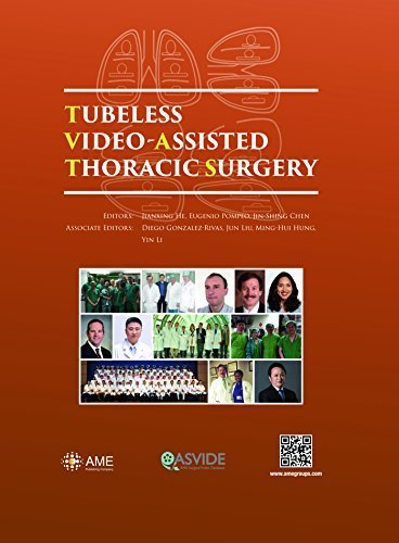 Tubeless Video-Assisted Thoracic Surgery