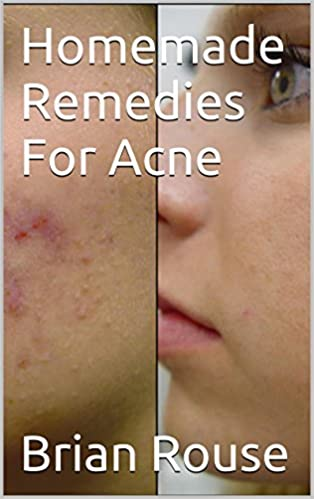 Manuels téléchargeables en ligneHomemade Remedies For Acne in French PDF PDB