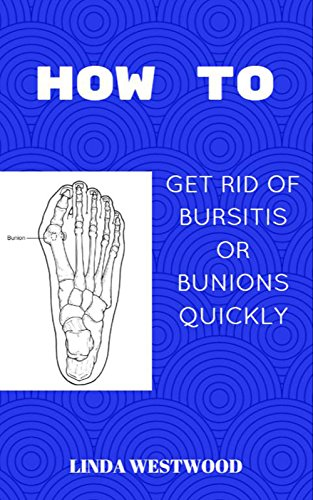How To, Get Rid Of Bursitis Or Bunion Quickly