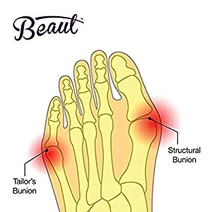 Bunion Corrector and Orthopedic Hallux Valgus Relief Splint Gel Bunion Pads Sleeves Brace - Toe Stretcher Bunion Guard for Men and Women Gel Toe Space