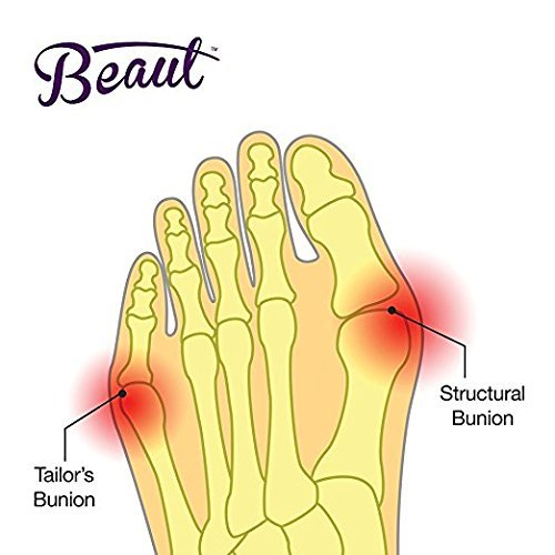 Bunion Corrector - Bunion Toe Straightener and Bunion Relief Detox Sleeve Bunion Pad with EuroNatural Gel - Orthopedic Bunion Corrector and Metatarsal Pad for Hammertoe and Hallux Valgus (Small) Photo #5
