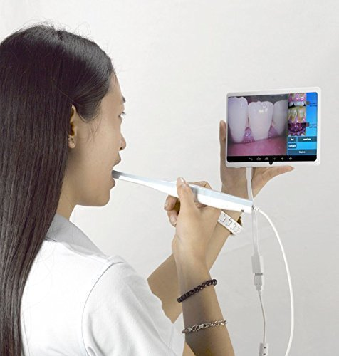 Smile Dental Digital Intraoral USB Camera ,Clear Images, Automatic Focusing ,Dentist Imaging Tool ,Freeze Images,Works With Most Imaging Software,1-year Replacement