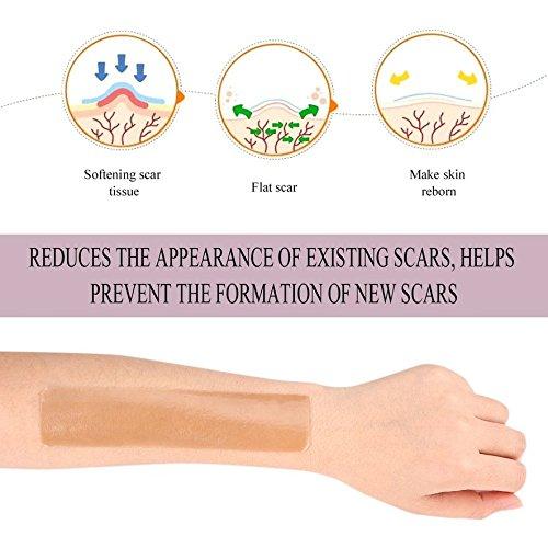 8Eninine Silicone Scar Gel Paste Medical Burn Scar Sheet Skin Repair Scar Therapy Patch Skin