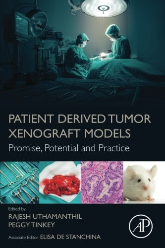 Patient Derived Tumor Xenograft Models: Promise, Potential and Practice by Uthamanthil Rajesh