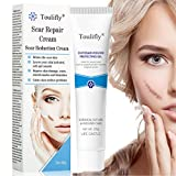 Scar Removal,Acne Scar Removal,Scar Gel,Scar Treatment Cream,Scar Fade Cream for Face and Body Reduces the Appearance of Old & New Scars (20g)