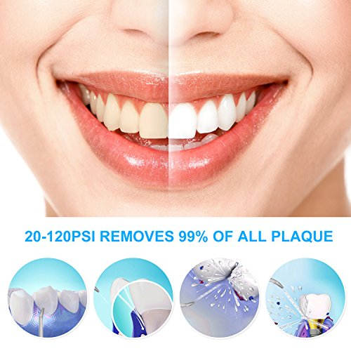 Aquarius Water Flosser IREVOOR Professional Dental Water Flosser Energy Saved 12 watt 110-240V Stepless Speed Change Oral Irrigator with 4 Jet Tips 1 Tongue Scraper for Family by IreVoor (Image #1)