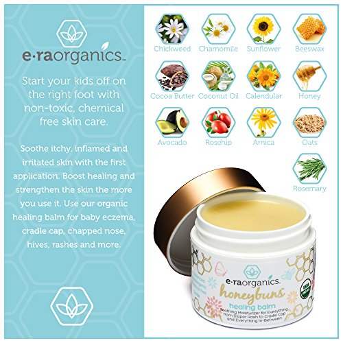 Healing Ointment for Babies 2oz  USDA Certified Organic Natural Healing  Cream for Baby Eczema, Cradle Cap (Infant Seborrheic Dermatitis), Chapped