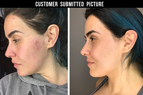 Dermatologist Recommended Acne Pads. Maximum Strength Acne Treatment With Three Active Ingredients: Salicylic Acid, Glycolic Acid, Lactic Acid. Alcohol-Free For Face And Body Acne