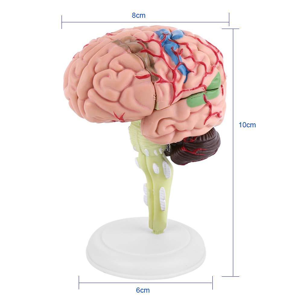 Zerlegtes menschliches Gehirn Modell Strukturelle Anatomie ...
