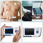 Mascarello®HEAL FORCE PC-80B Handheld Color ECG EKG Portable Heart Monitor 50x Electrode US