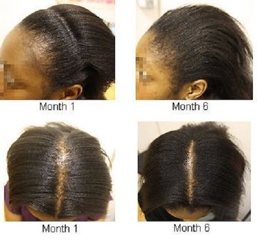 Rejuvenating Potent Jamaican Black Castor Oil 8oz Hair loss Prevention Large Bottle Formulated for Alopecia Balding Thinning Edges: Amazon.es: Electrónica