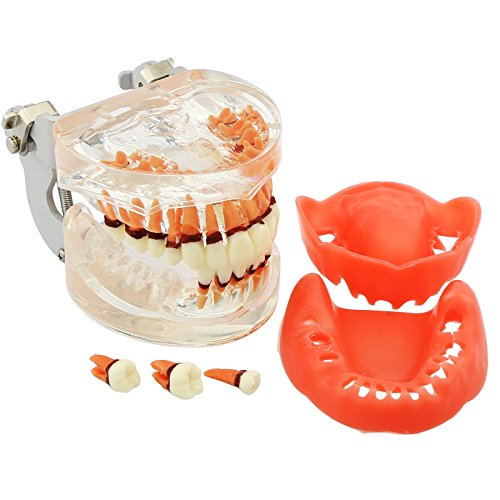 Dental Teeth Model for Parodontopathy Periodontal Disease , Removable Gingivae Pathology Teeth Model Used in Teaching,Explain,Studying for Adult(Transparent)