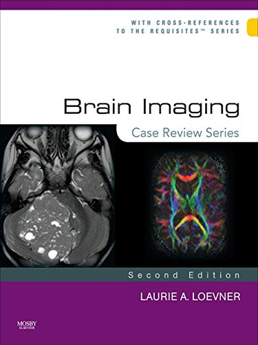 Brain Imaging: Case Review Series: Case Review Series Pdf