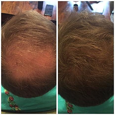 Fibras capilares para la pérdida de cabello, corrector para pérdida de cabello o cabello fino, de Cinderella Hair 22g: Amazon.es: Belleza