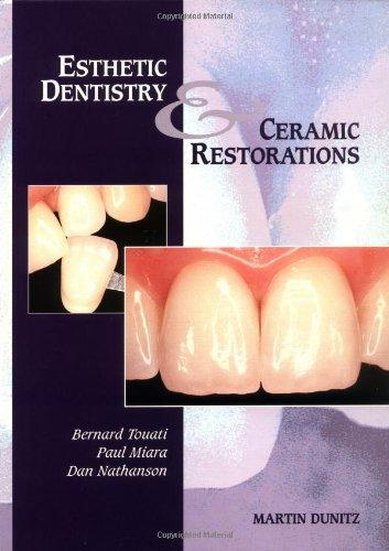 Esthetic Dentistry and Ceramic Restoration