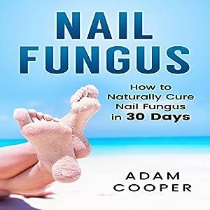 Nail Fungus Treatment Audiobook