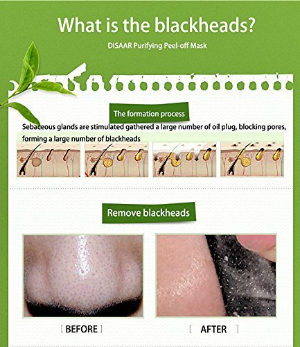 Vassoul Blackhead Remover Mask, Suction Purifying Peel-off Mask with Activated Charcoal Deep Pore Cleanse for Acne