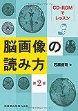 CD-ROMでレッスン 脳画像の読み方 第2版