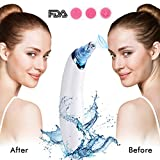 Blackhead remover vacuum with 5 pore vacuum blackhead sucker changeable heads for microdermabrasion and suction tool rechargeable black vacuum kit 3 blackhead extractor suction blackhead vacuum