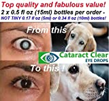 The Strongest Cataract Treating Eye Drops Anywhere
